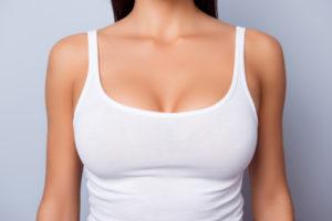 Mamoplastia de aumento (prótese de mama)