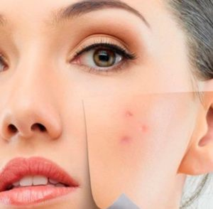 Cicatriz de acne na Barra da Tijuca