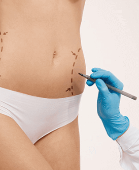 Cirurgia Plástica Corporal no Rio de Janeiro